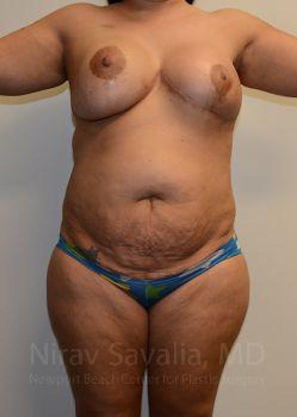 Abdominoplasty / Tummy Tuck Gallery - Patient 1655657 - Image 1