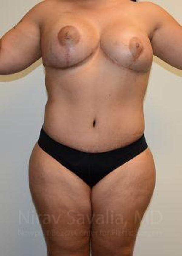 Abdominoplasty / Tummy Tuck Gallery - Patient 1655657 - Image 2