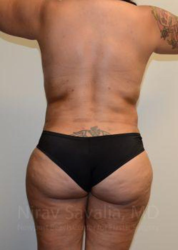 Abdominoplasty / Tummy Tuck Gallery - Patient 1655657 - Image 4