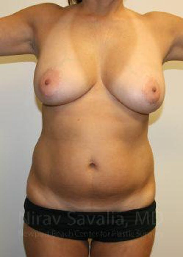Liposuction Gallery - Patient 1655658 - Image 1
