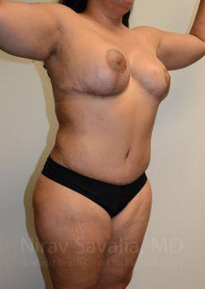 Abdominoplasty / Tummy Tuck Gallery - Patient 1655657 - Image 8