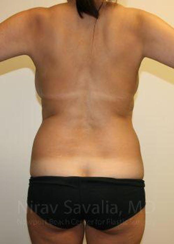 Liposuction Gallery - Patient 1655658 - Image 3
