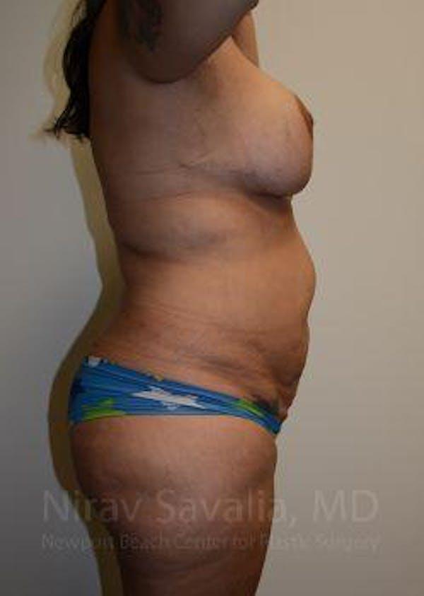 Abdominoplasty / Tummy Tuck Gallery - Patient 1655657 - Image 9