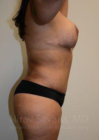 Abdominoplasty / Tummy Tuck Gallery - Patient 1655657 - Image 10