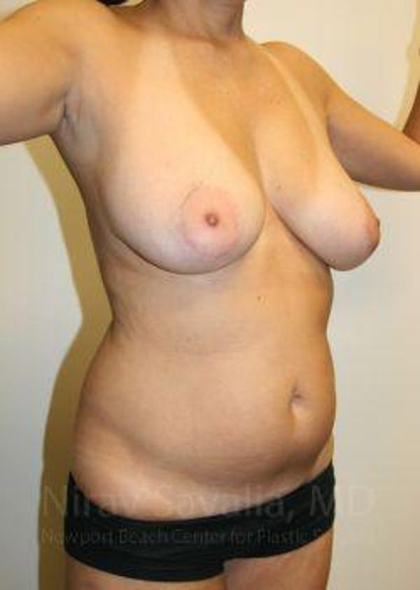 Liposuction Gallery - Patient 1655658 - Image 5