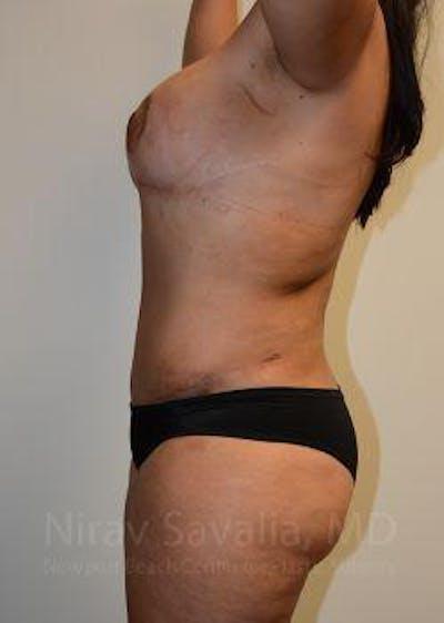 Abdominoplasty / Tummy Tuck Gallery - Patient 1655657 - Image 12