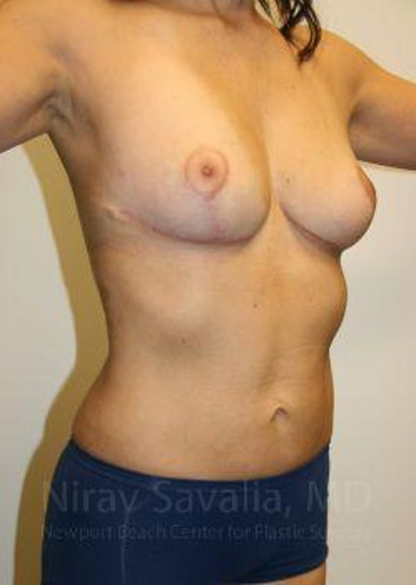 Liposuction Gallery - Patient 1655658 - Image 6