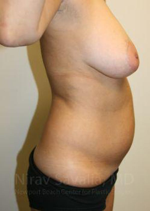 Liposuction Gallery - Patient 1655658 - Image 9