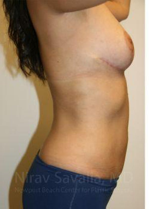 Liposuction Gallery - Patient 1655658 - Image 10
