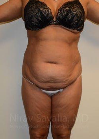 Abdominoplasty / Tummy Tuck Gallery - Patient 1655659 - Image 1