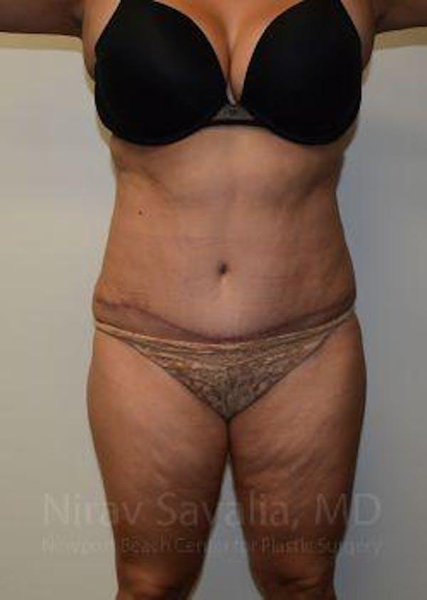 Abdominoplasty / Tummy Tuck Gallery - Patient 1655659 - Image 2