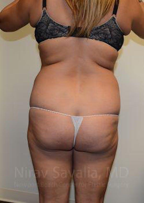 Abdominoplasty / Tummy Tuck Gallery - Patient 1655659 - Image 3