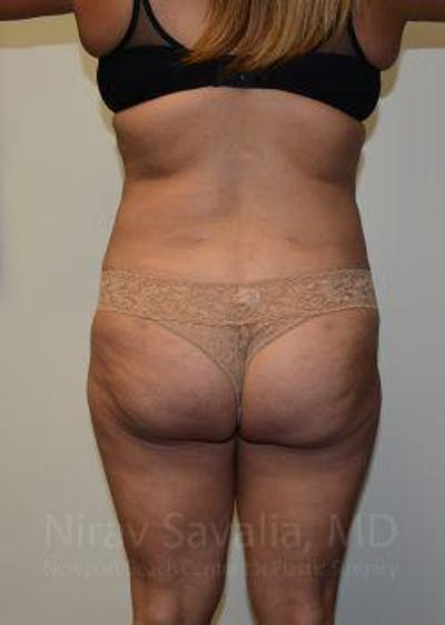 Abdominoplasty / Tummy Tuck Gallery - Patient 1655659 - Image 4