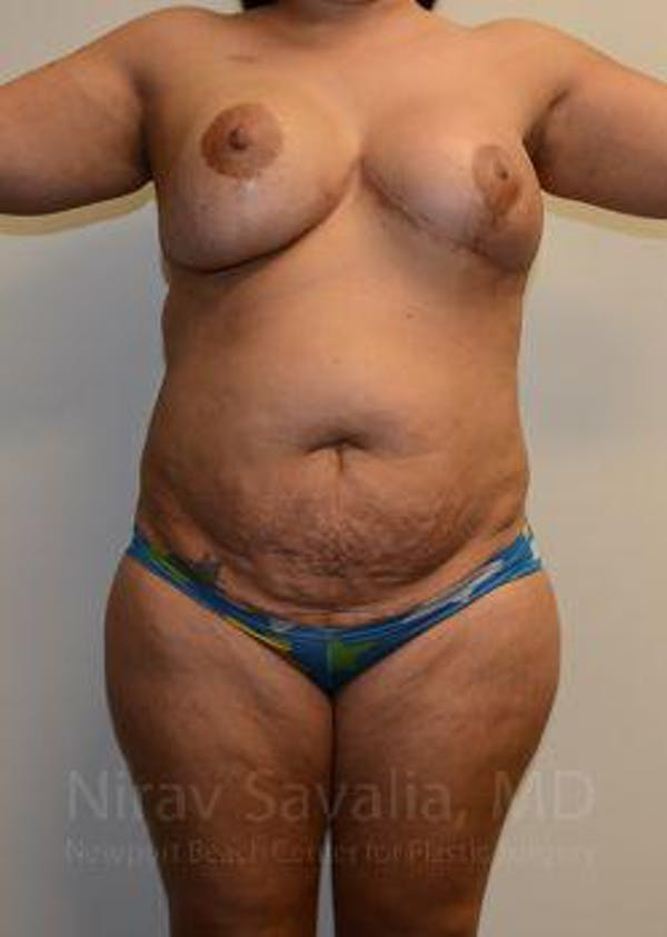 Liposuction Gallery - Patient 1655660 - Image 1