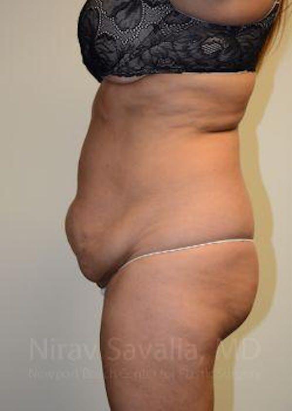 Abdominoplasty / Tummy Tuck Gallery - Patient 1655659 - Image 5