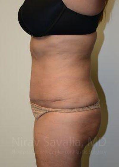 Abdominoplasty / Tummy Tuck Gallery - Patient 1655659 - Image 6