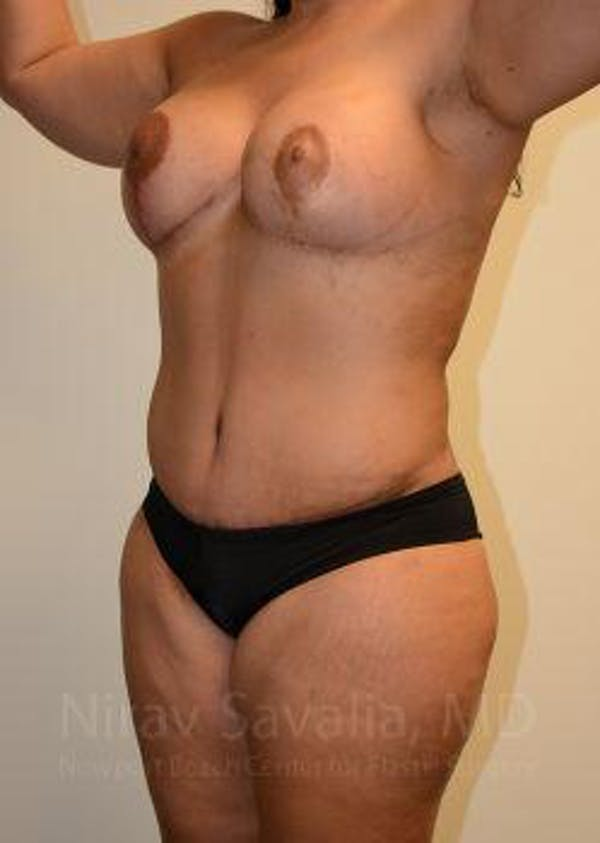 Liposuction Gallery - Patient 1655660 - Image 6