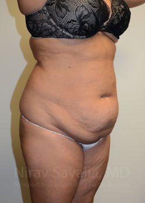 Abdominoplasty / Tummy Tuck Gallery - Patient 1655659 - Image 9