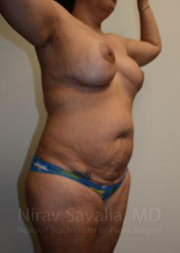 Liposuction Gallery - Patient 1655660 - Image 7