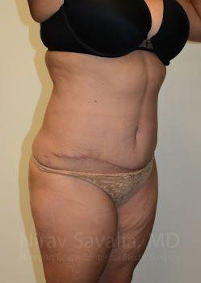 Abdominoplasty / Tummy Tuck Gallery - Patient 1655659 - Image 10