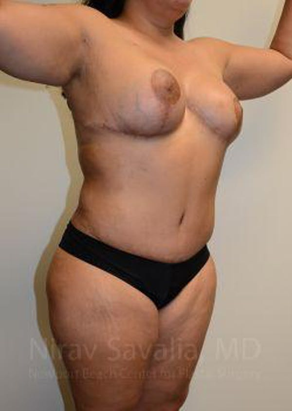 Liposuction Gallery - Patient 1655660 - Image 8