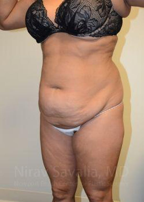 Abdominoplasty / Tummy Tuck Gallery - Patient 1655659 - Image 11