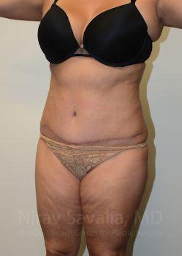 Abdominoplasty / Tummy Tuck Gallery - Patient 1655659 - Image 12