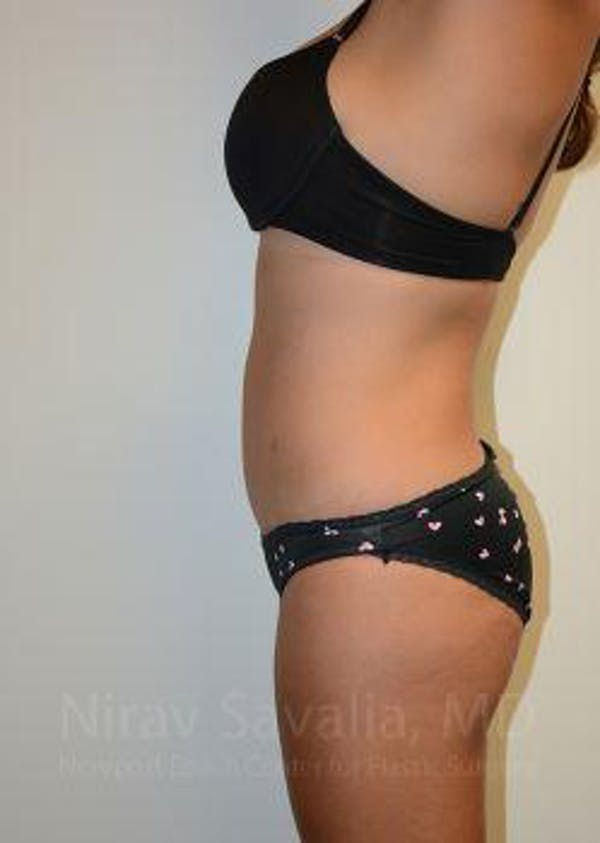 Liposuction Gallery - Patient 1655662 - Image 8