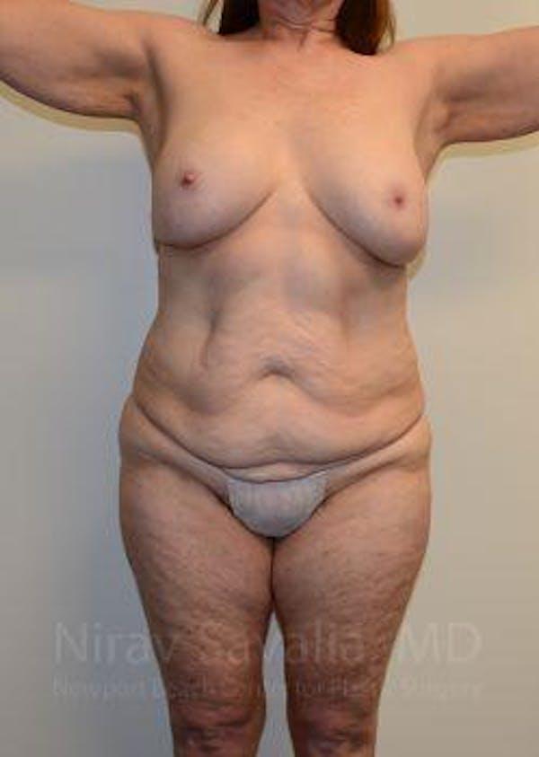 Abdominoplasty / Tummy Tuck Gallery - Patient 1655663 - Image 1