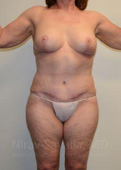 Abdominoplasty / Tummy Tuck Gallery - Patient 1655663 - Image 2