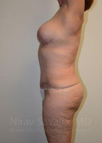 Abdominoplasty / Tummy Tuck Gallery - Patient 1655663 - Image 6