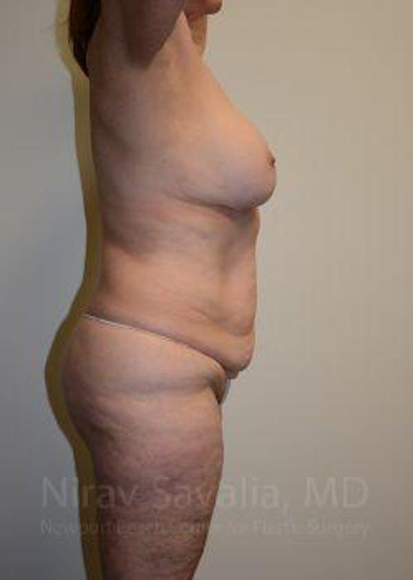 Abdominoplasty / Tummy Tuck Gallery - Patient 1655663 - Image 7