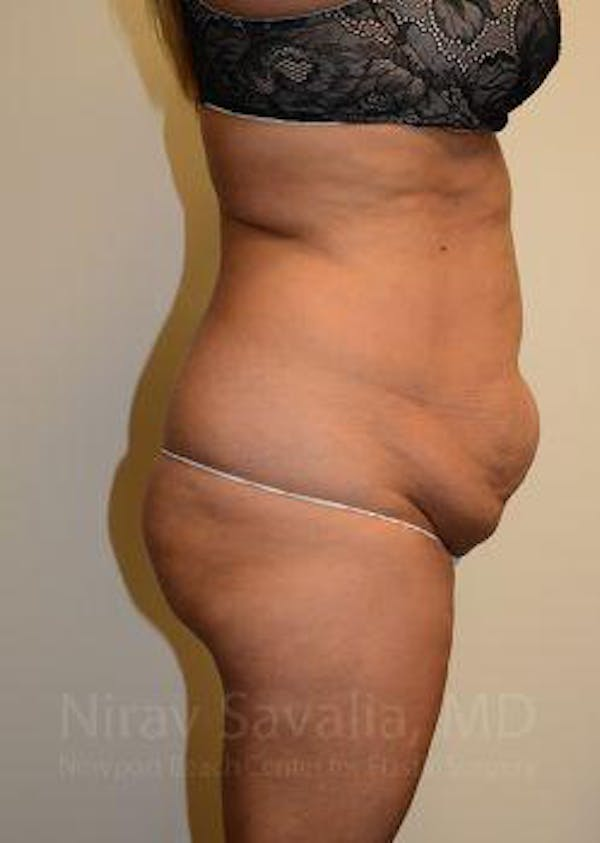 Liposuction Gallery - Patient 1655664 - Image 7