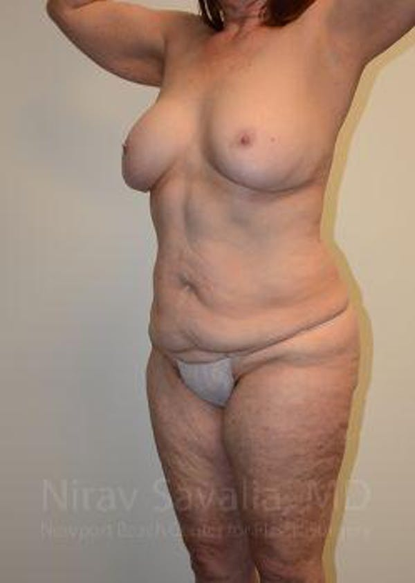 Abdominoplasty / Tummy Tuck Gallery - Patient 1655663 - Image 9