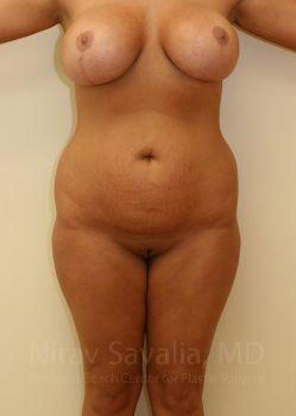 Abdominoplasty / Tummy Tuck Gallery - Patient 1655666 - Image 1