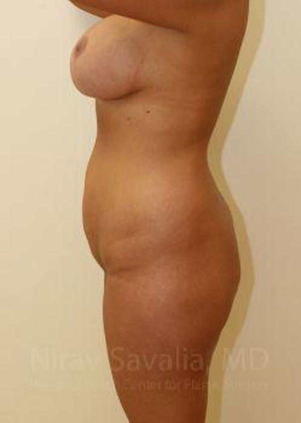Abdominoplasty / Tummy Tuck Gallery - Patient 1655666 - Image 3