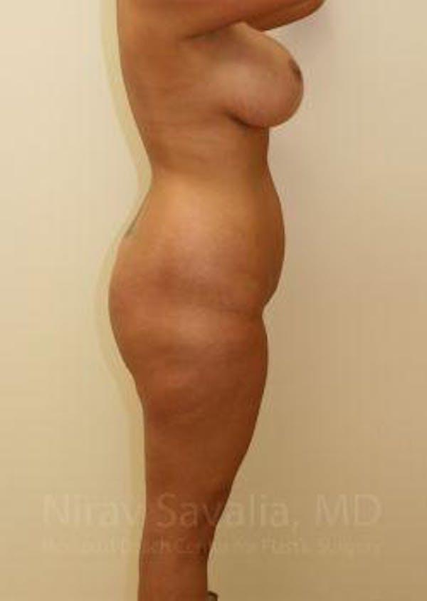 Abdominoplasty / Tummy Tuck Gallery - Patient 1655666 - Image 5