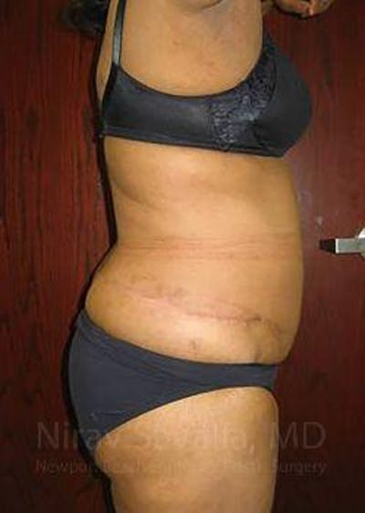 Liposuction Gallery - Patient 1655665 - Image 4