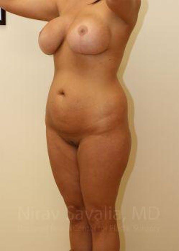 Abdominoplasty / Tummy Tuck Gallery - Patient 1655666 - Image 7