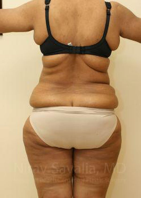 Liposuction Gallery - Patient 1655665 - Image 7