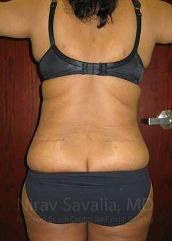 Liposuction Gallery - Patient 1655665 - Image 8