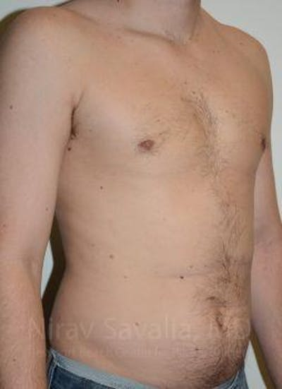 Liposuction Gallery - Patient 1655667 - Image 4