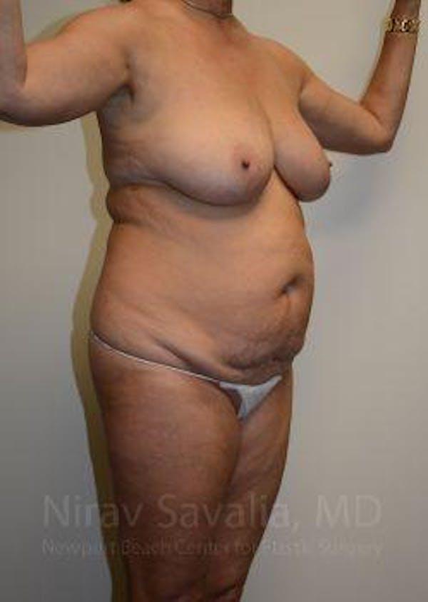 Abdominoplasty / Tummy Tuck Gallery - Patient 1655668 - Image 9