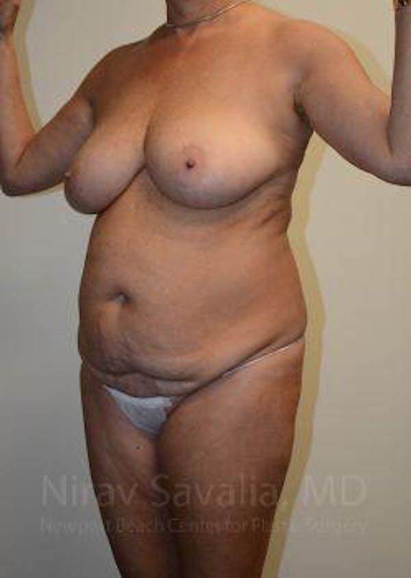 Abdominoplasty / Tummy Tuck Gallery - Patient 1655668 - Image 11
