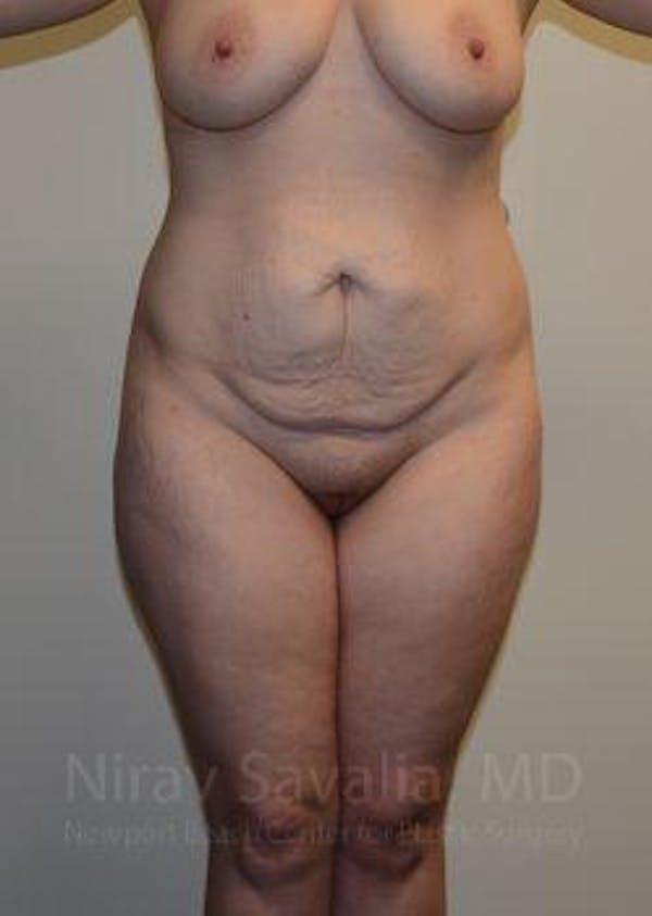 Abdominoplasty / Tummy Tuck Gallery - Patient 1655670 - Image 1