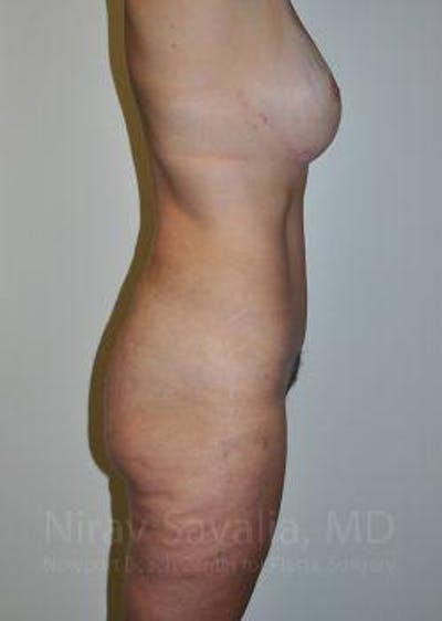 Liposuction Gallery - Patient 1655669 - Image 6