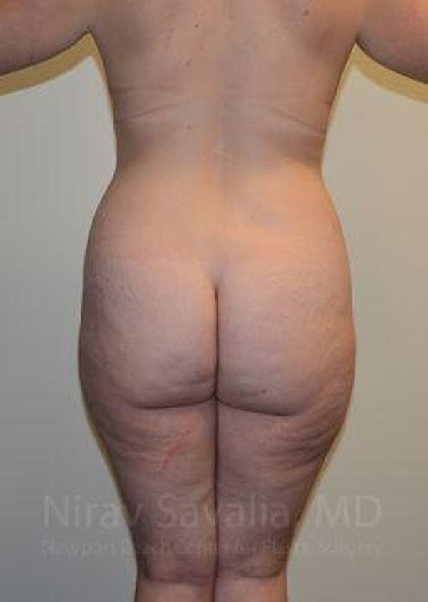 Abdominoplasty / Tummy Tuck Gallery - Patient 1655670 - Image 3