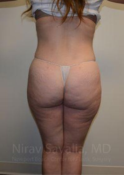 Abdominoplasty / Tummy Tuck Gallery - Patient 1655670 - Image 4