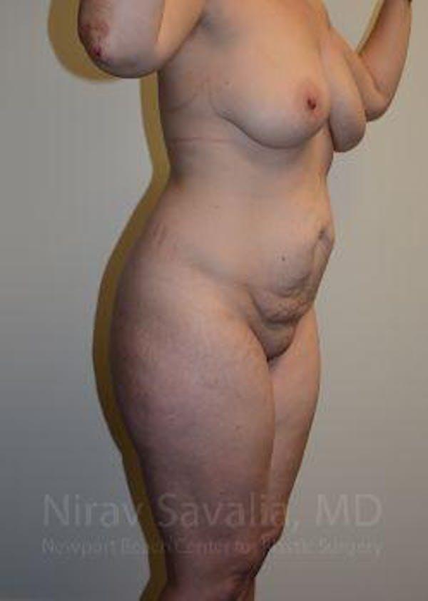 Abdominoplasty / Tummy Tuck Gallery - Patient 1655670 - Image 5