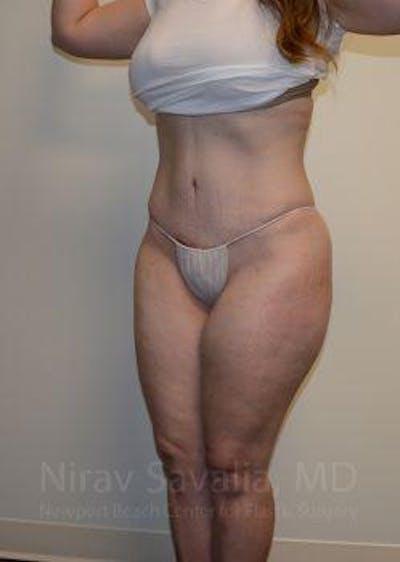 Abdominoplasty / Tummy Tuck Gallery - Patient 1655670 - Image 8